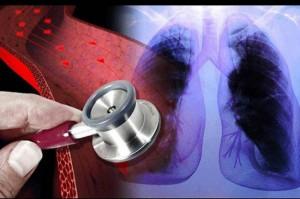 """Califican de """"exitosa"""" la primera  cirugía compleja a corazón abierto en un hospital público"""